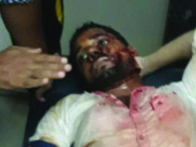 بیلتھنگڈی میں چاقو گھونپنے سے دو افراد زخمی۔۔علاج کے لئے آئی سی یو میں داخل