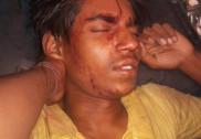 ವಿ ಆರ್ ಎಲ್ ಬಸ್ ಹಾಗೂ ಲಾರಿ ಮುಖಾಮುಖಿ ಡಿಕ್ಕಿ 7 ಜನರಿಗೆ ಗಂಭೀರ ಗಾಯ
