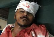 Bhatkal road mishap: 2 bikes collide - 3 injured, 1 serious