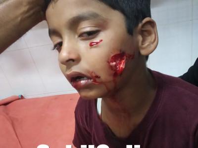 بھٹکل میں بچے پر آوارہ کتے کا حملہ : انجکشن کے لئے لے جانا پڑا بیندور؛ بچہ شدید زخمی