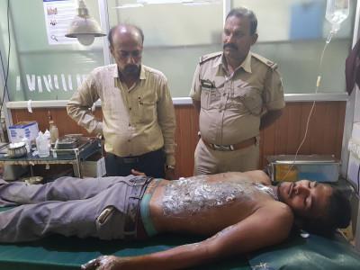 بھٹکل : دوست کو  بچانے کی کوشش میں شیرور کا نوجوان خود جھلس گیا؛  شدید زخمی