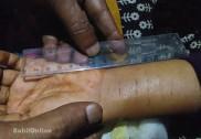ಹೊನ್ನಾವರ ಶಾಲಾ ಬಾಲಕಿ ಚೂರಿ ಇರಿತ ಪ್ರಕರಣ ಬೇಧ