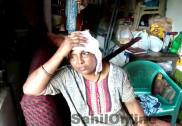 کاروار میں زوردار بارش؛ مکان پر ناریل کا درخت گرنے سے ایک خاتون زخمی