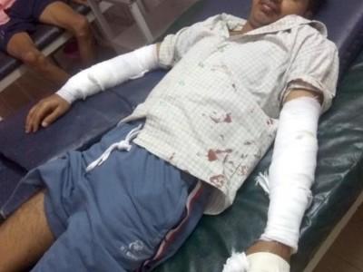 ہوناور میں راہ گیر پر چیتے کاحملہ : ہمت وحوصلے نے بچائی جان